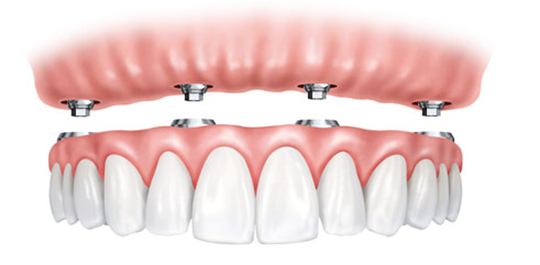 Implantatprothesen